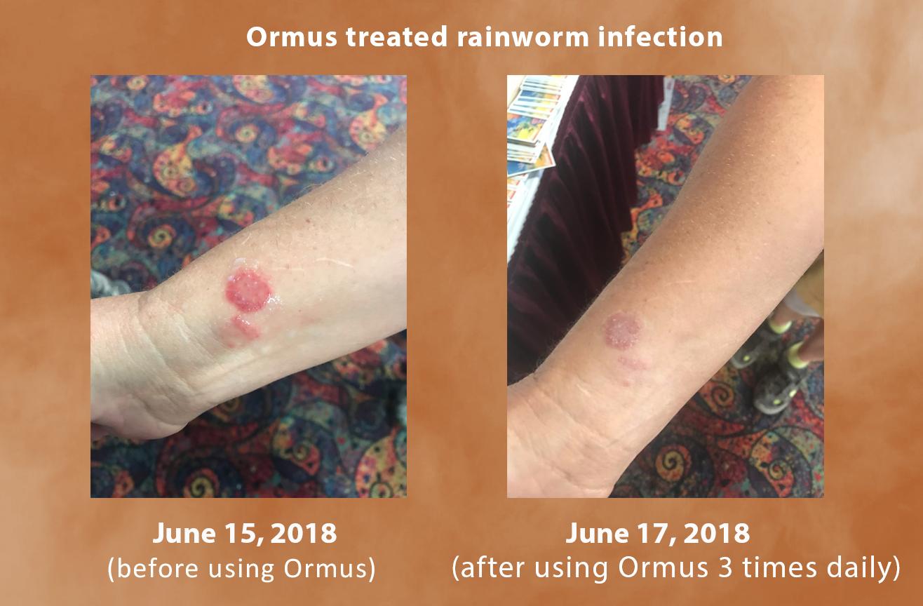 Ormus testimony ringworm infection